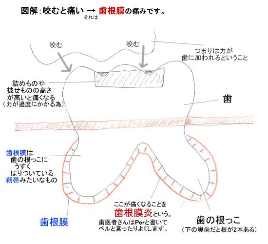 歯根膜の痛み